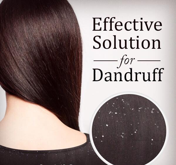 best dandruff treatment singapore